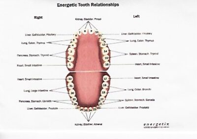 Are your teeth killing you? Or do you have KILLER teeth?